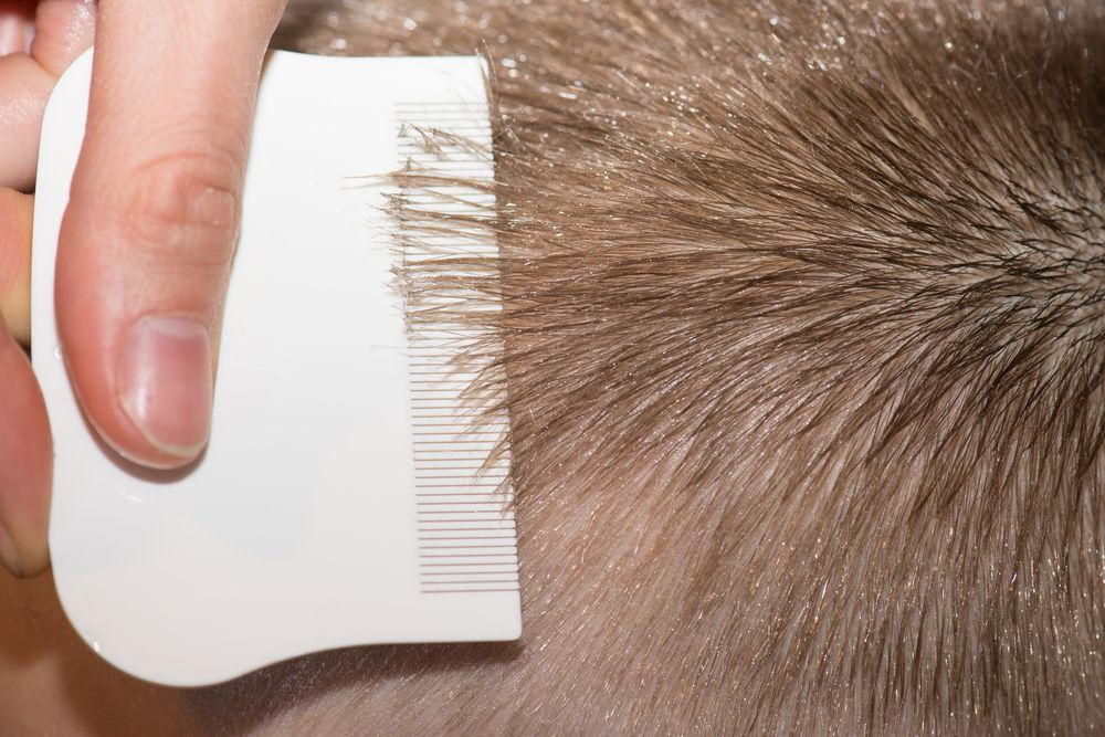 How to get rid of lice | Popular Science