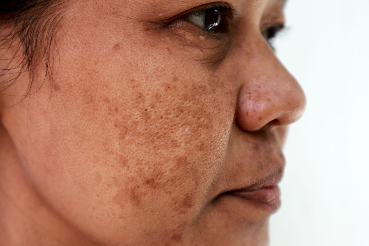 Remedios Caseros Son Efectivos Los Tratamientos De Luz Intensa Para Quitar Manchas De Melasma De La Cara