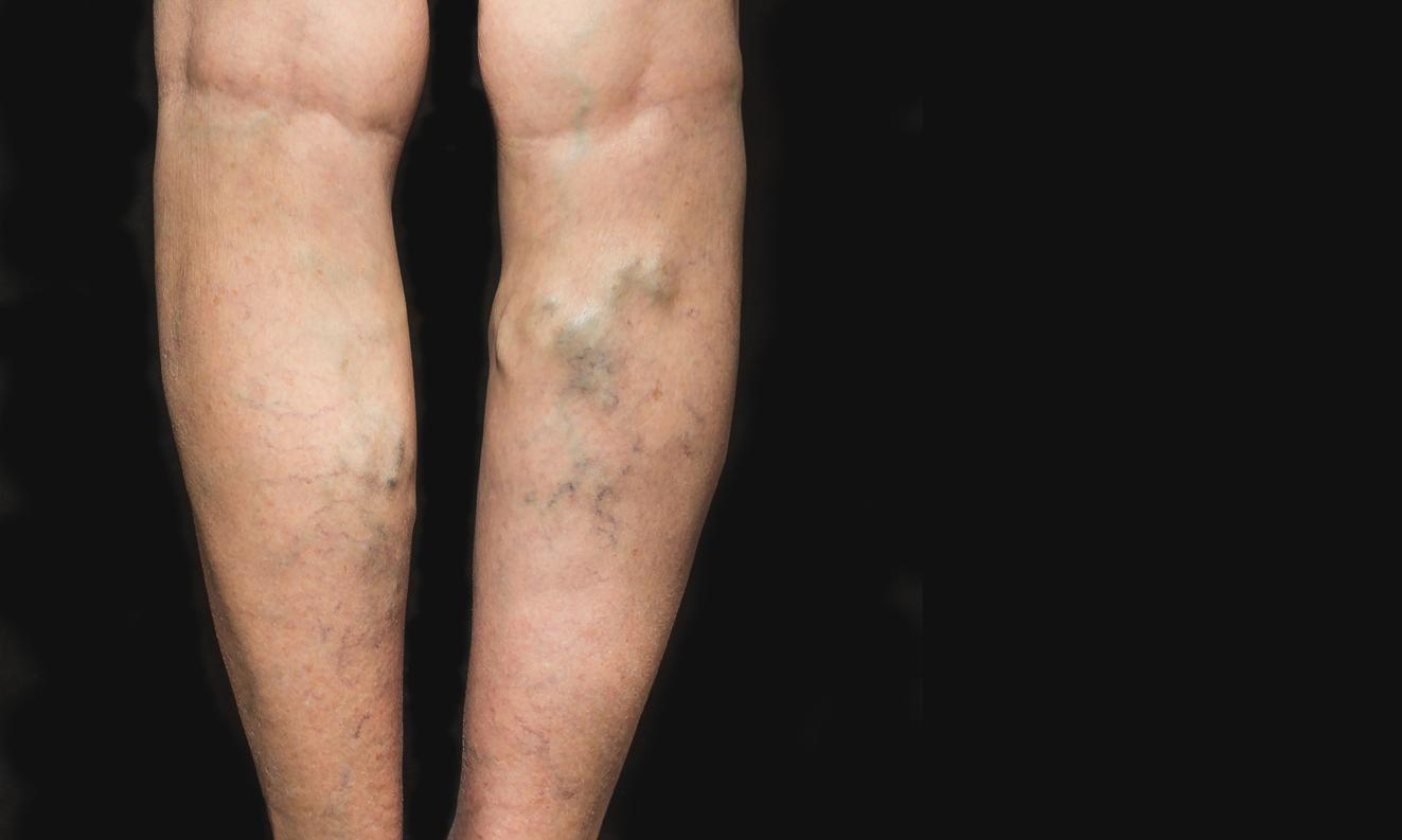 Várices y úlceras venosas: consejos para sobrellevar las altas temperaturas